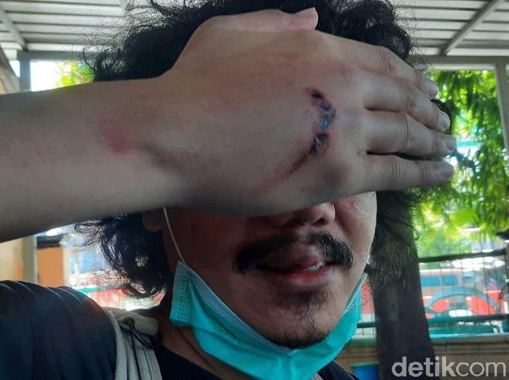 Wartawan Online di Surabaya Jadi Korban Begal Saat Akan Sahur