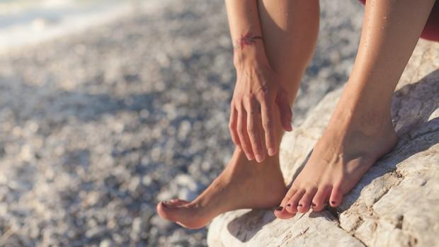 Dry shampoo juga bisa mengurangi lecet pada kaki
