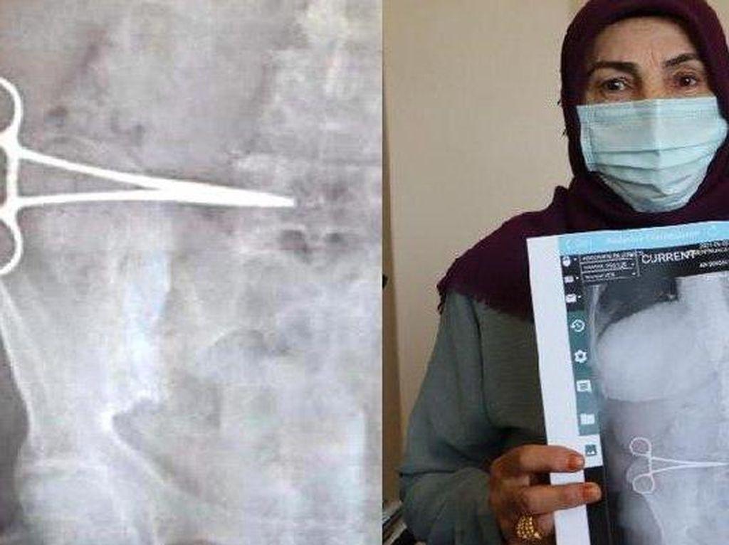 Operasi Tummy Tuck Berujung Bencana, Gunting Tertinggal di Perut Wanita Ini