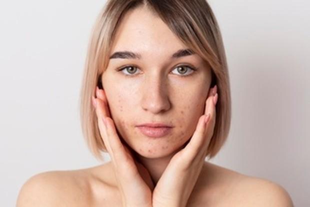 Memanfaatkan minyak alami yang ada di wajah.