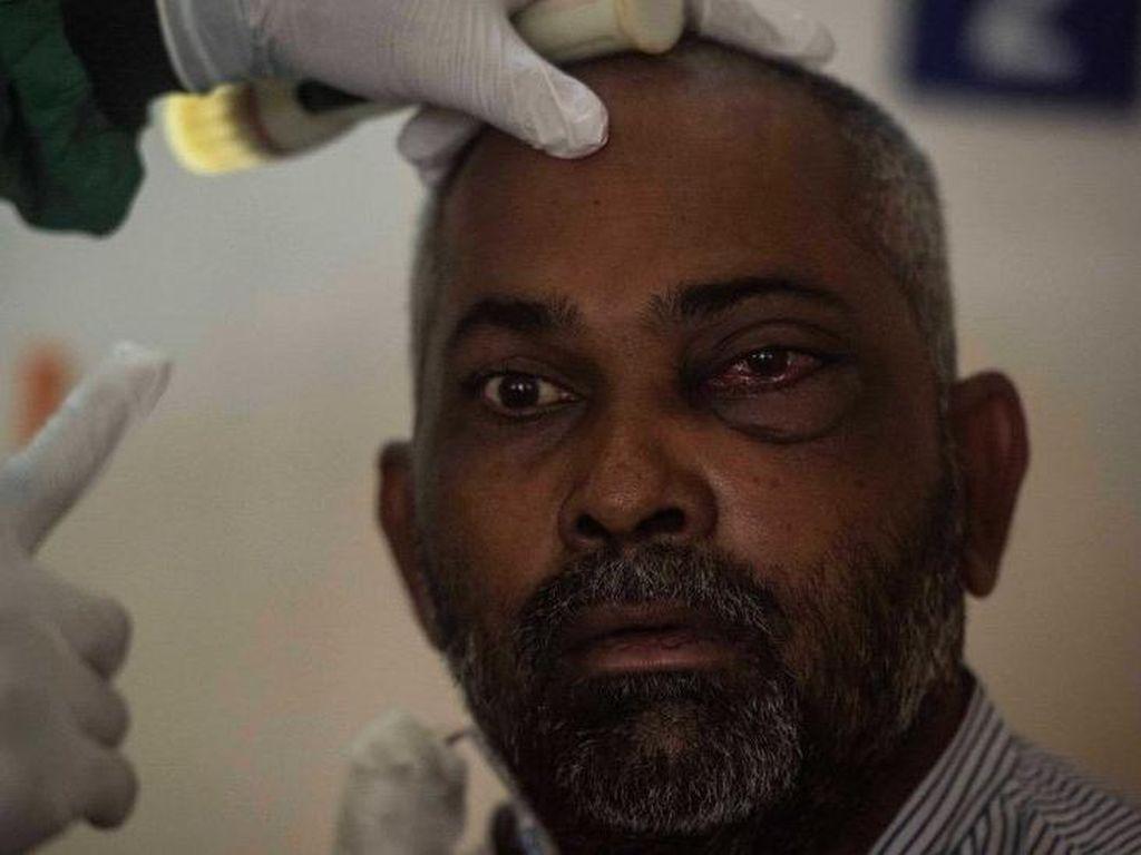 Corona di India Kini Diperparah Penyakit Jamur Putih, Apa Gejalanya?