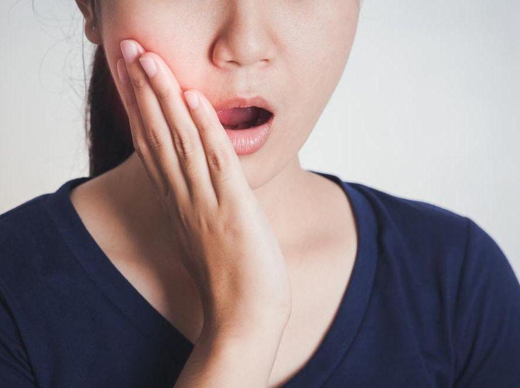 Cara Menyembuhkan Sakit Gigi, Pertolongan Pertama Sebelum Berobat ke Dokter