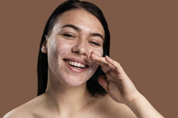 Mengatasi kulit berminyak dan berjerawat/freepik.com