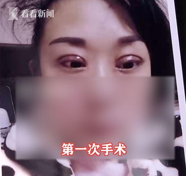 Operasi lipatan mata gagal.