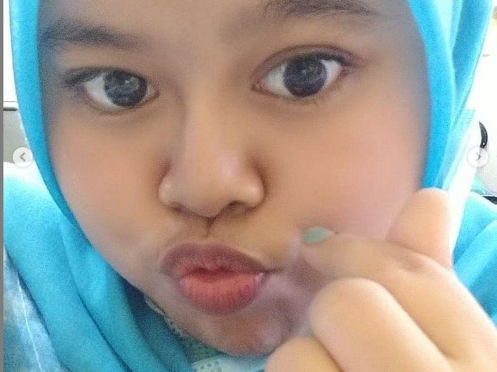 7 Penampilan Kekeyi dengan Hidung Setelah Filler, Foto Before After-nya Viral