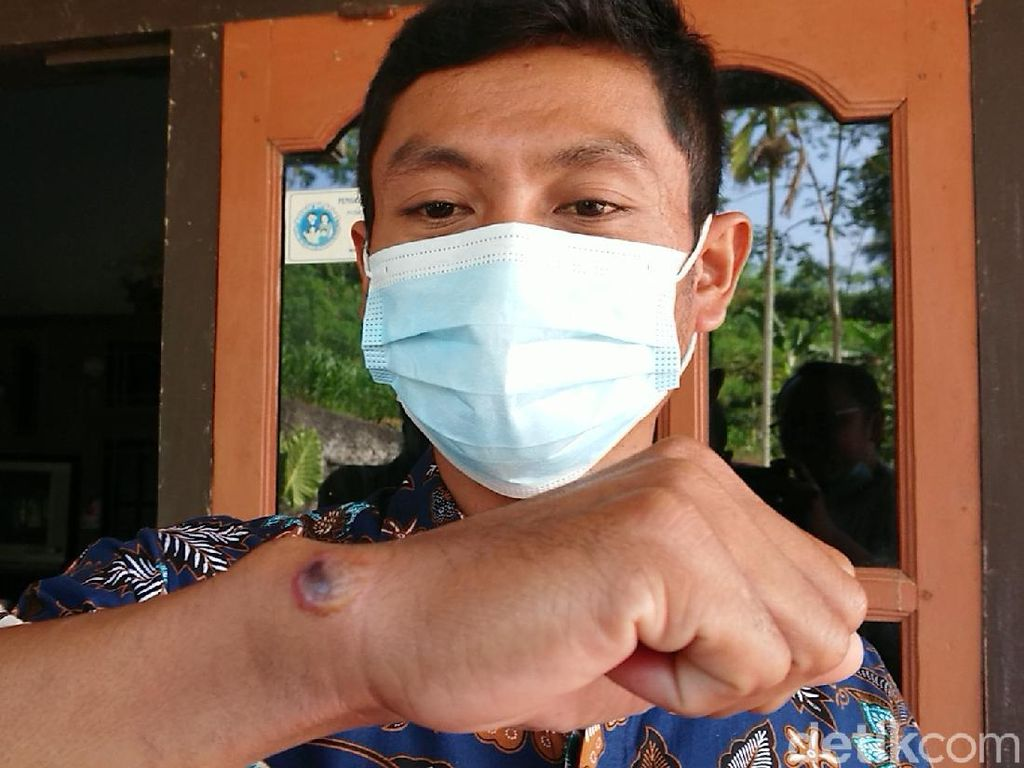 Cerita Kepala Dusun di Tulungagung yang Diduga Terpapar Antraks