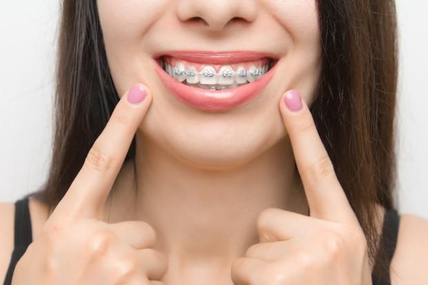 Warna hitam dan putih dapat membuat tampilan gigi menjadi kurang bagus.