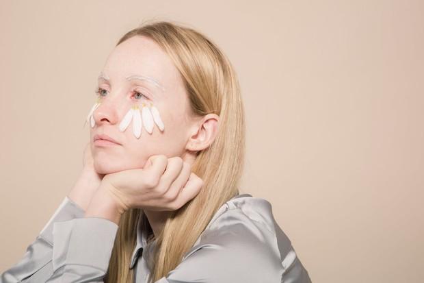 Tranexamid acid dalam skincare bisa atasi iritasi akibat jerawat