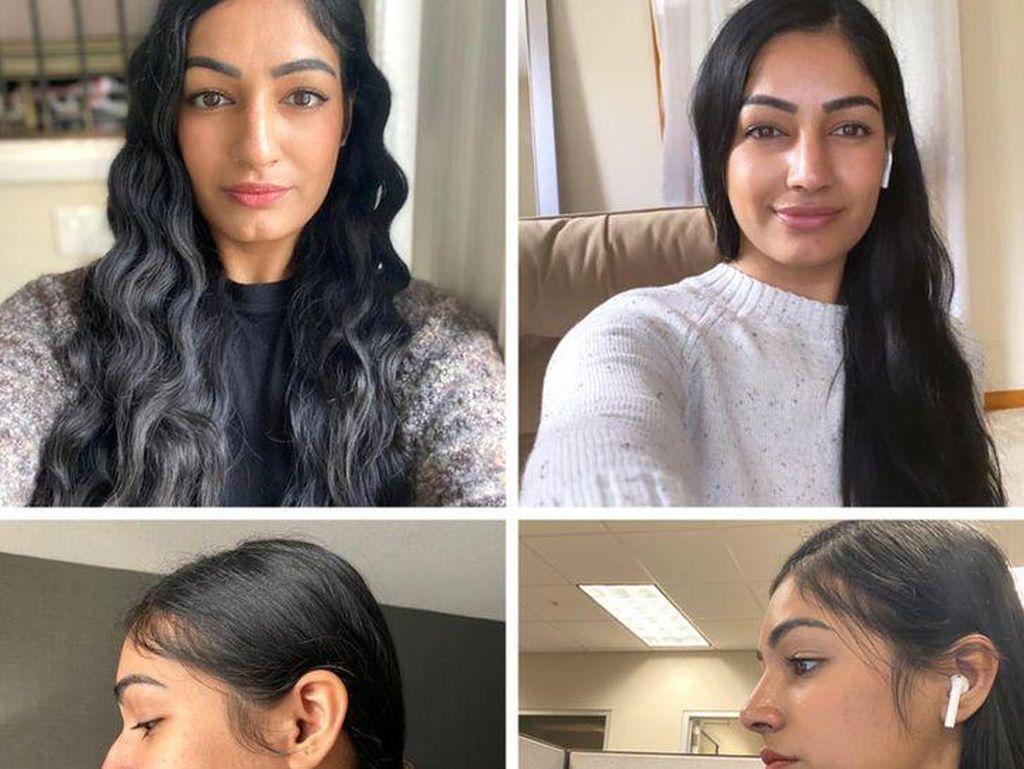 7 Transformasi Dramatis Pasien Operasi Hidung, Seperti Orang Lain