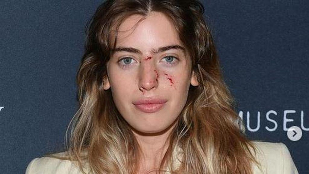 Muka Berdarah Usai Digigit Anjing, Putri Ewan McGregor Eksis di Red Carpet