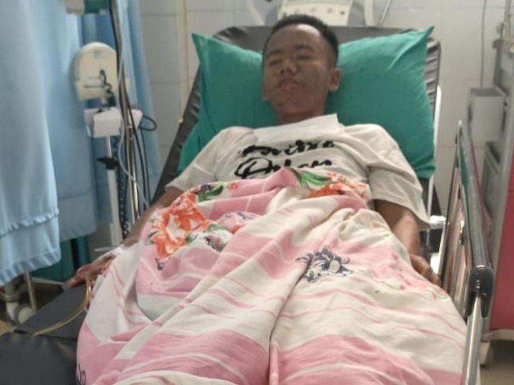 Tubuh Pemuda ODGJ di Pandeglang Melepuh Gegara Miras, Ini Kata Dokter