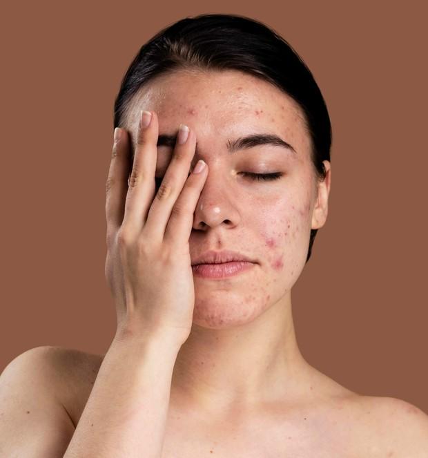 iritasi pada kulit