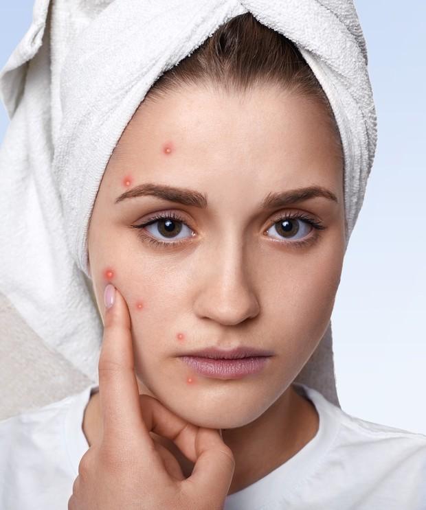 Make up yang tidak dibersihkan menyebabkan jerawat