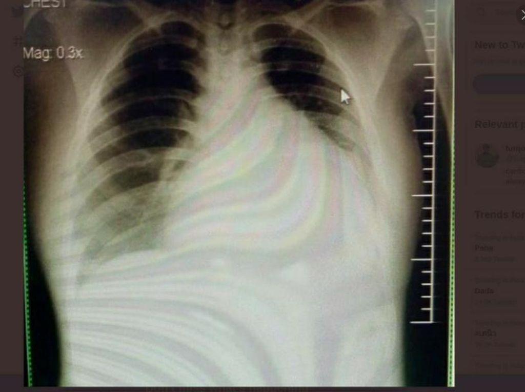 Viral Kisah Pasien Muda Kena Gagal Ginjal-Jantung Gegara Suka Minum Manis