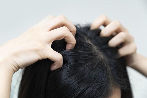 Penggunaan hair dryer bisa menyebabkan efek overheating atau sensasi terbakar pada kulit kepala.
