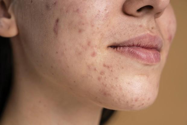 acne skin (sumber : freepik)