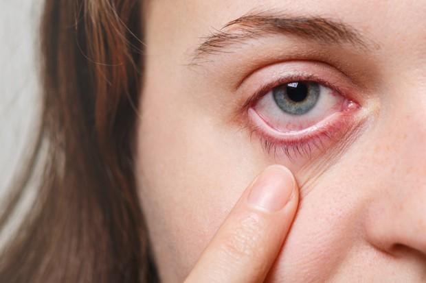 eye infection (sumber : freepik)