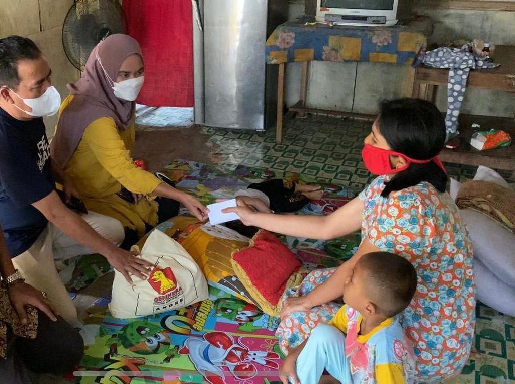 Andre Rosiade Beri Bantuan Balita yang Tersiram Minyak Panas di Padang