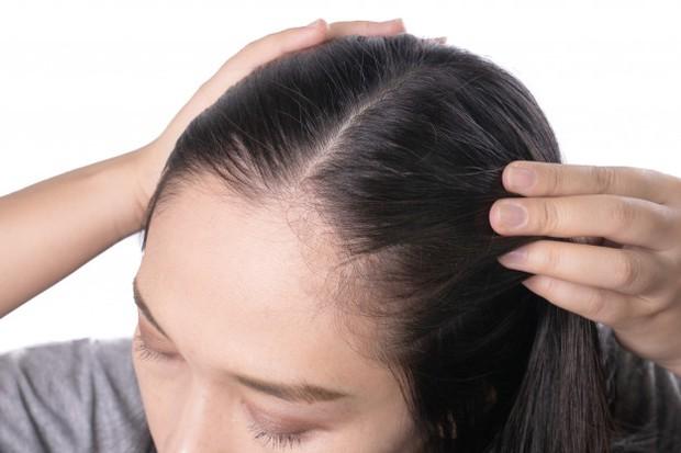 memperkuat akar rambut dan menutrisi rambut (sumber : freepik)