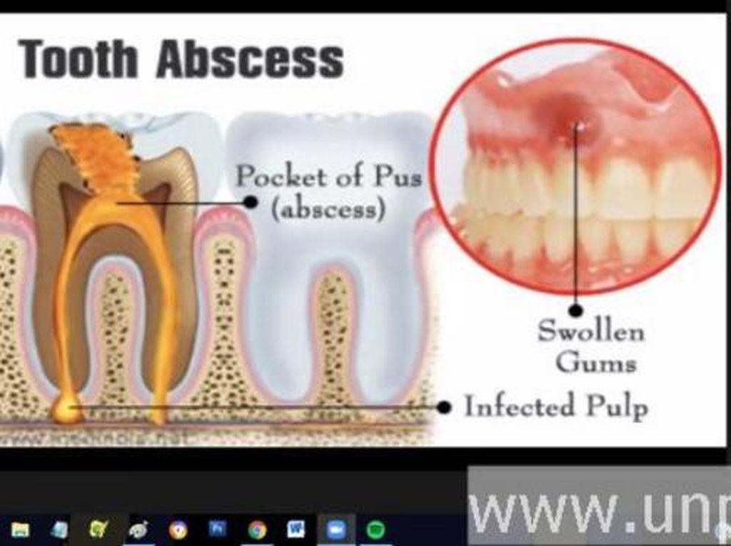 Dosen Unpad Jelaskan Efek Gigi Mati yang Dibiarkan: Infeksi Sampai Hidung