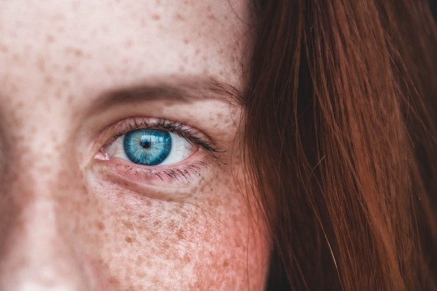 Flek hitam muncul karena jenis kulit sensitif.