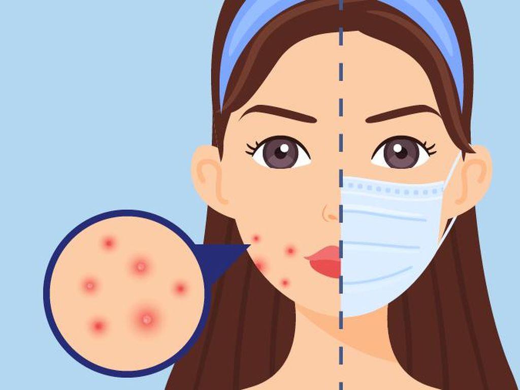 Simak! Ini 5 Cara Mencegah Jerawat Akibat Terus Pakai Masker