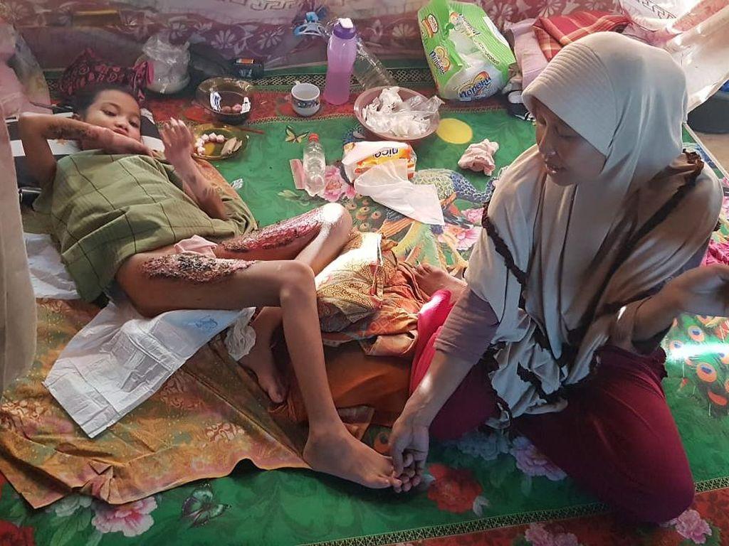 Bocah di Polman Alami Luka Bakar Kena Minyak Panas, Ortu Kesulitan Biaya