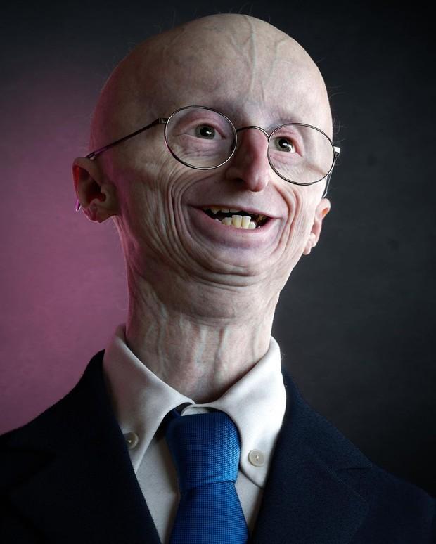 Gejala Progeria / Foto : instagram.com/theantropus
