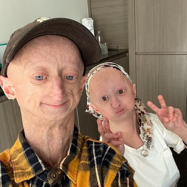 Sosok pengidap penyakit progeria / Foto : instagram.com/michielvandeweert