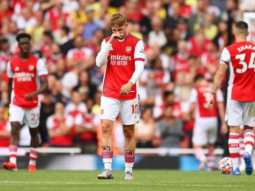 Arsenal Kehilangan DNA-nya
