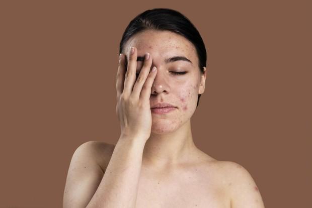 Tanda-tanda kulit yang over exfoliating/