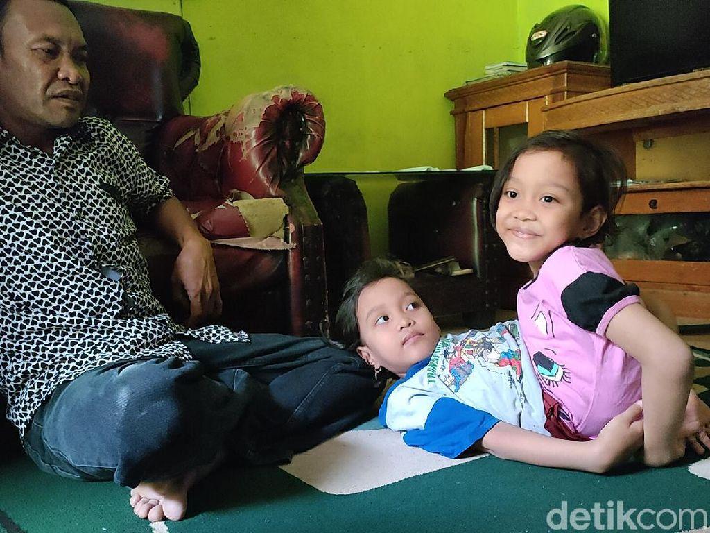Menengok Aktivitas Bocah Kembar Siam Dempet Perut di Garut