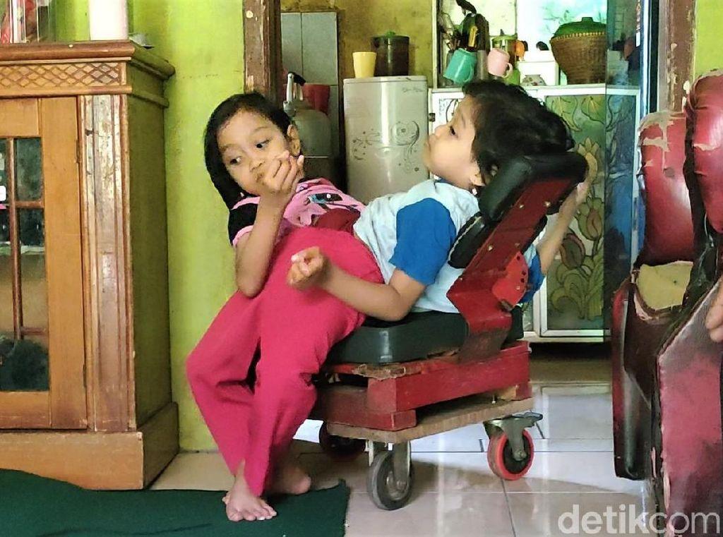 Sering Sakit Pinggang, Bocah Kembar Siam Dempet Perut Butuh Kursi Roda Baru