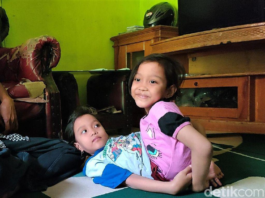 Potret Dewi dan Putri, Bocah Kembar Siam Dempet Perut di Garut