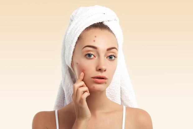 Terakhir, ginseng dapat mencegah timbulnya jerawat pada kulit. Sebab jika mengonsumsi ginseng, keseimbangan hormone tubuh pun akan terjaga.