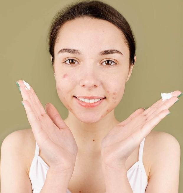 Memakai retinol sejak usia 20-an atasi jerawat