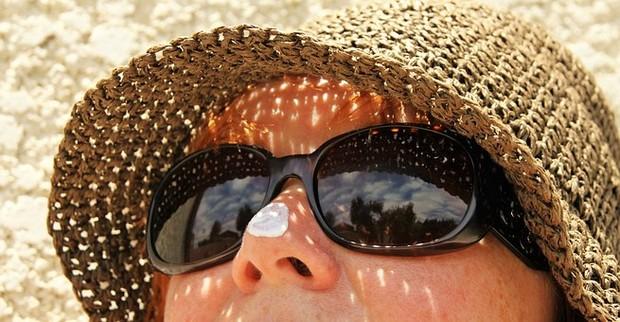 Melindungi Kulit dari Sinar Matahari dan Meredakan Kulit yang Terbakar Sinar Matahari / foto : pixabay