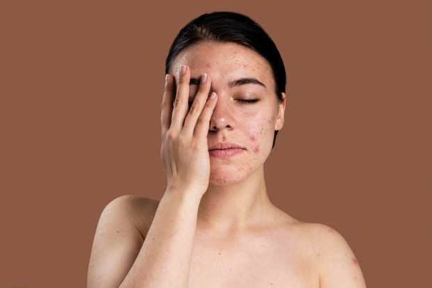 Acne shaming