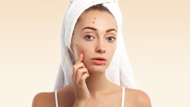 Dulu memencet jerawat, kini memakai acne patch.