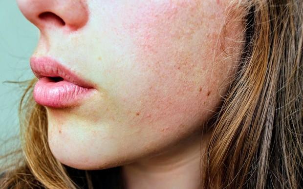 Muncul kemerahan pada wajah / foto : pexels.com/JennaHamra