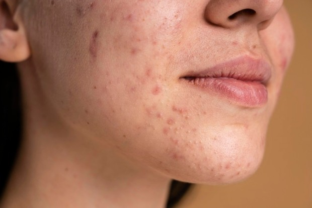 Tanda alergi kosmetik juga ditandai dengan munculnya ruam.