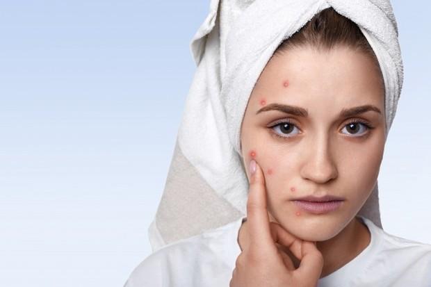 Salah satu alergi kosmetik bisa berupa biduran.
