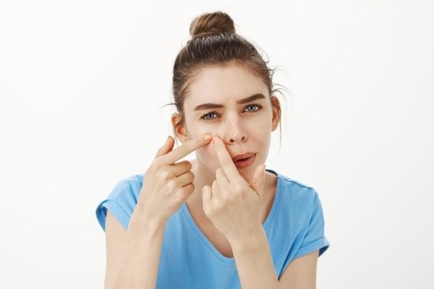 Alergi kosmetik juga bisa ditandai dengan munculnya jerawat dan komedo.