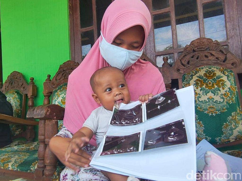 Bayi Atta di Boyolali Mengalami Jantung Bocor
