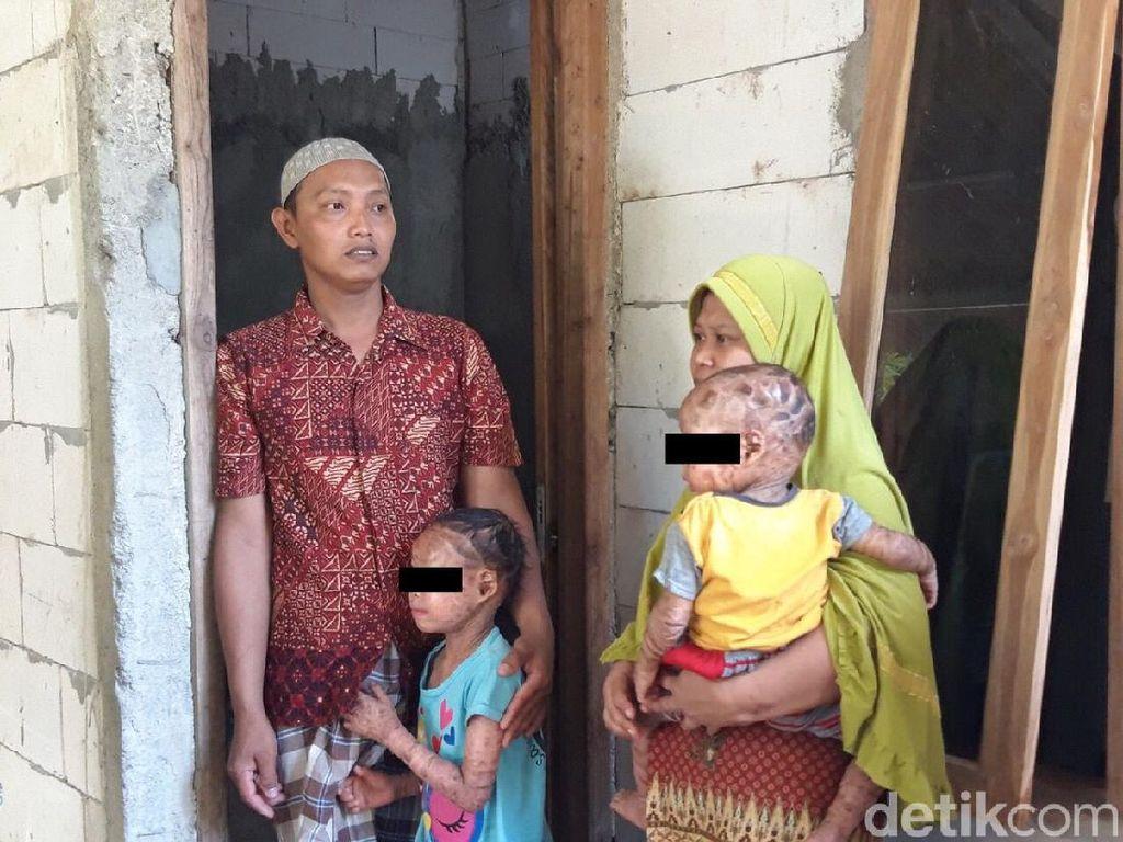 Kulit Pecah-Bersisik Sekujur Tubuh, Dua Bocah di Boyolali Idap Kelainan Langka
