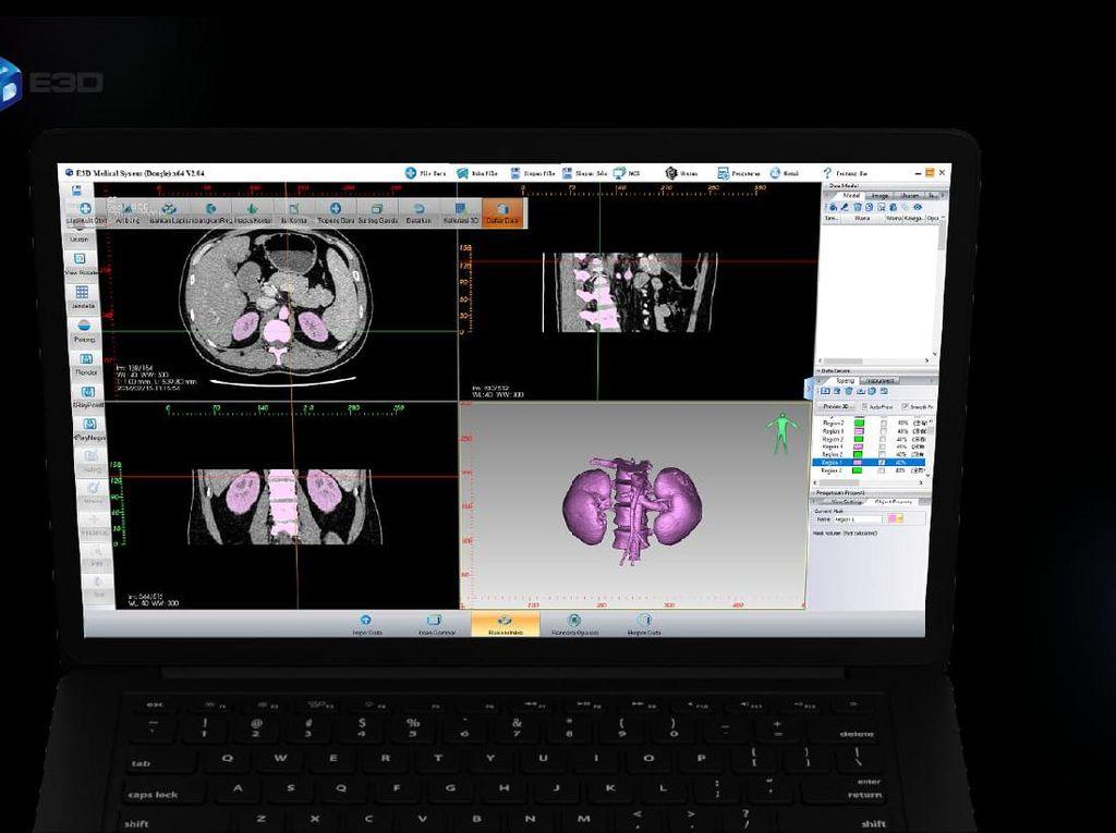 Begini Penerapan Teknologi 3D Printing di Dunia Kesehatan