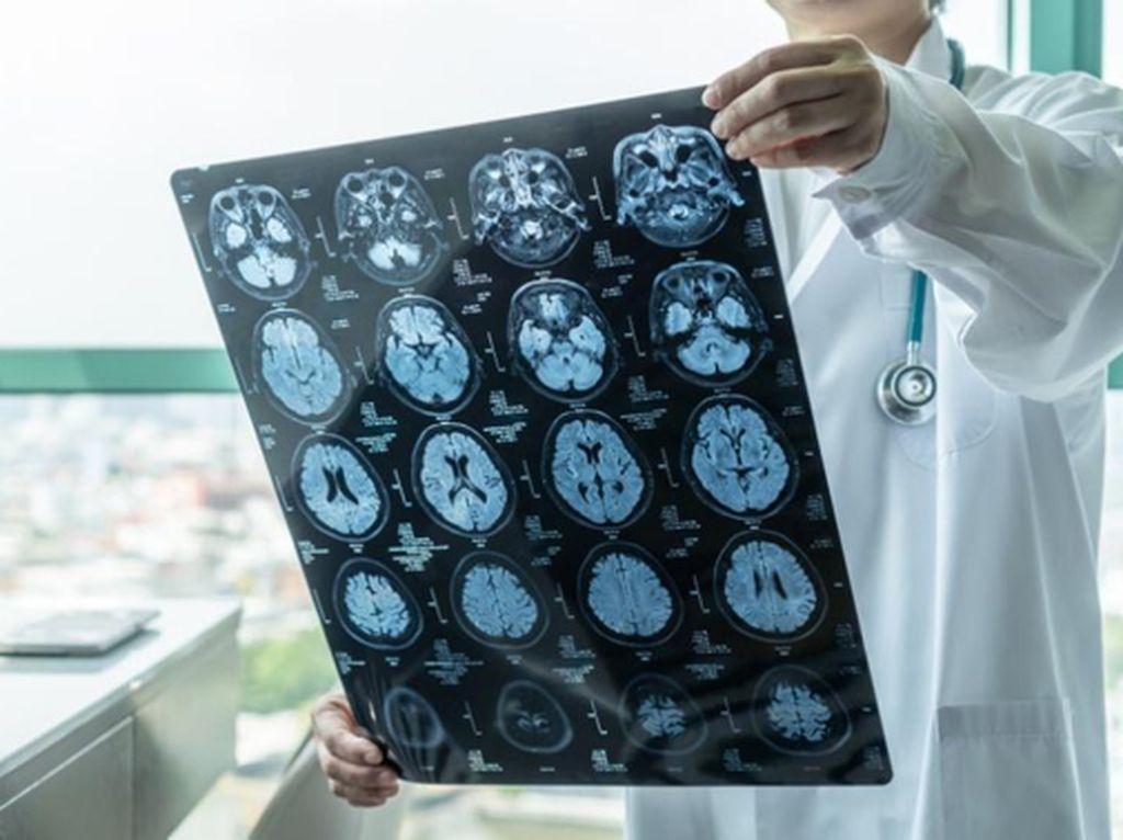 Bahaya Stroke Intai Siapa Saja, Gimana Cara Tanganinya Sejak Dini?