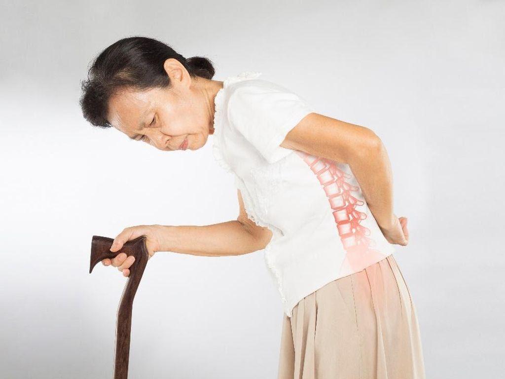 Osteoporosis Mengancam Masa Tua, Lakukan Hal Ini untuk Mencegahnya!