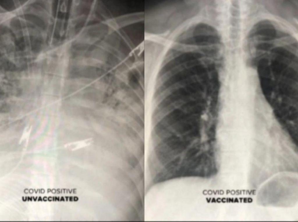 Penampakan Paru Pasien COVID-19 yang Sudah Vaksin Vs Belum, Ini Hasilnya