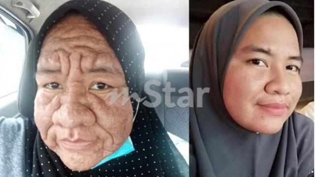 Hamil 3 Bulan, Wajah Wanita Ini Mendadak Berubah Seperti Nenek-nenek
